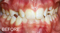 before and after adult orthodontics
